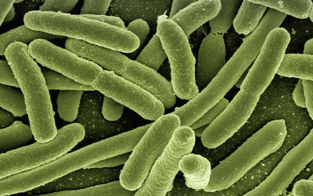 https://pixabay.com/photos/koli-bacteria-escherichia-coli-123081/